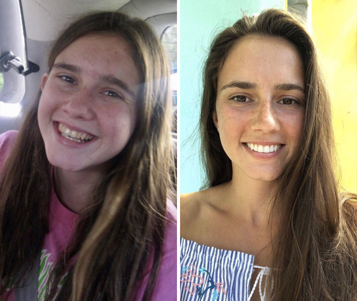 12. 15 vs 23 år