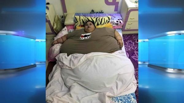 Hon är världens tyngsta kvinna och kan inte lämna sängen - men se bara vad läkaren gör då